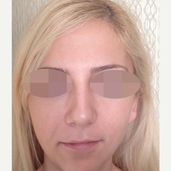 25-34 year old woman treated with Rhinoplasty before 3107606