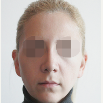 25-34 year old woman treated with Rhinoplasty after 3107606