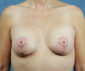Breast Lift with Implants after 3032953