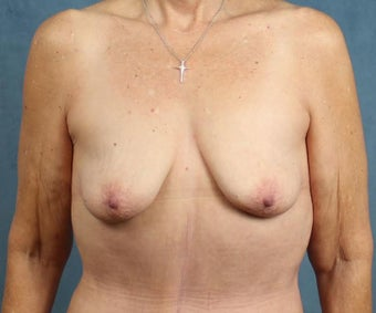 Breast Lift with Implants before 3032953