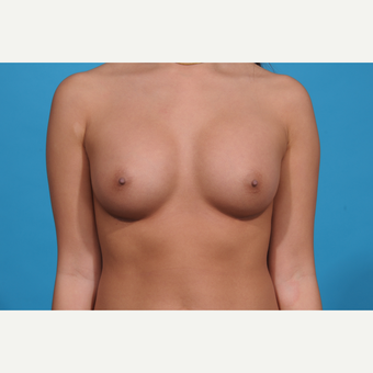 18-24 year old woman treated with Breast Augmentation after 3038329