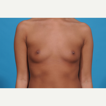 18-24 year old woman treated with Breast Augmentation before 3038329