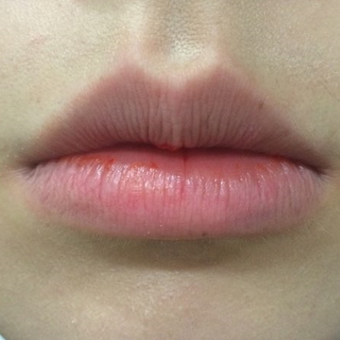 18-24 year old woman treated with Botox for Lips before 2997538