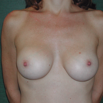 25-34 year old woman treated with Breast Augmentation after 3337259