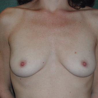 25-34 year old woman treated with Breast Augmentation before 3337259