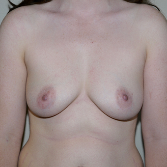 25-34 year old woman treated with Breast Augmentation before 3011753