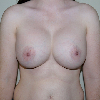25-34 year old woman treated with Breast Augmentation after 3011753