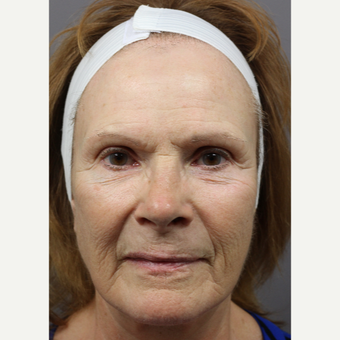 65-74 year old woman treated with Skin Rejuvenation