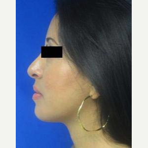 Rhinoplasty after 2990570