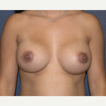 25-34 year old woman treated with Breast Augmentation after 3454834