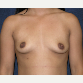 25-34 year old woman treated with Breast Augmentation before 3454834