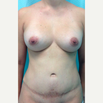 25-34 year old woman treated with Tummy Tuck Revision before 3450616