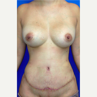 25-34 year old woman treated with Tummy Tuck Revision after 3450616