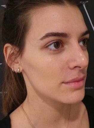 Non Surgical Nose Job after 3364429