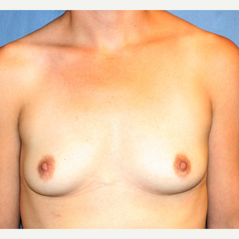 25-34 year old woman undergoing Breast Augmentation with Ideal breast implants before 3348456