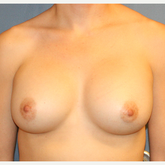 25-34 year old woman undergoing Breast Augmentation with Ideal breast implants after 3348456