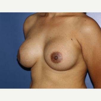 25-34 year old woman treated with Breast Augmentation after 3694988