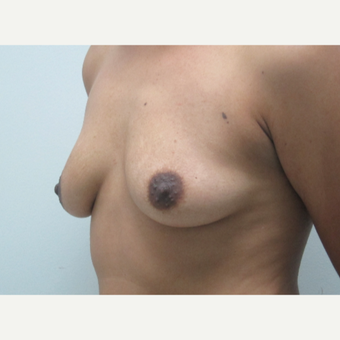 25-34 year old woman treated with Breast Augmentation before 3694988