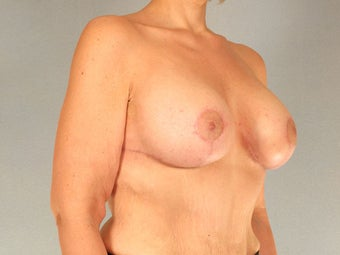 Breast Lift with Implants after 3032985
