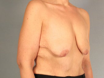 Breast Lift with Implants before 3032985