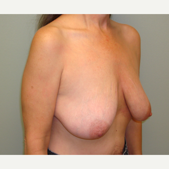 55-64 year old woman treated with Breast Lift with Implants before 3823201