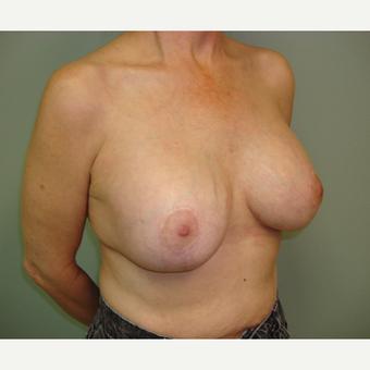 55-64 year old woman treated with Breast Lift with Implants after 3823201