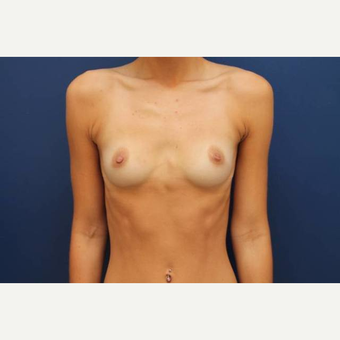 22 year old female, 700cc high profile silicone gel implants, submuscular before 3814537