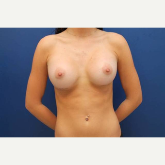 22 year old female, 700cc high profile silicone gel implants, submuscular after 3814537