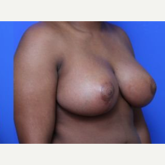 18-24 year old woman treated with Breast Reduction after 2268555