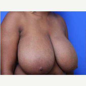 18-24 year old woman treated with Breast Reduction before 2268555