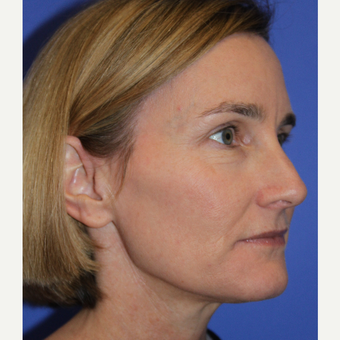 35-44 year old woman treated with Rhinoplasty before 3664403