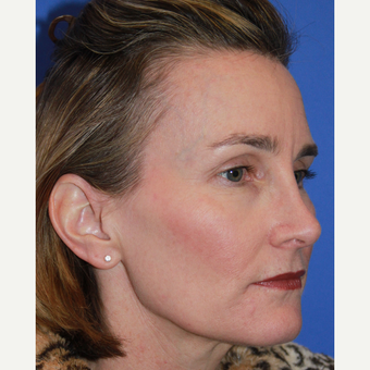 35-44 year old woman treated with Rhinoplasty after 3664403