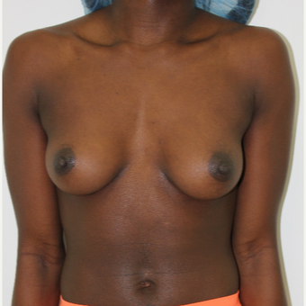 25-34 year old woman treated with Breast Augmentation before 3060220