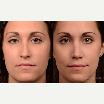 25-34 year old woman treated with Rhinoplasty before 3821227