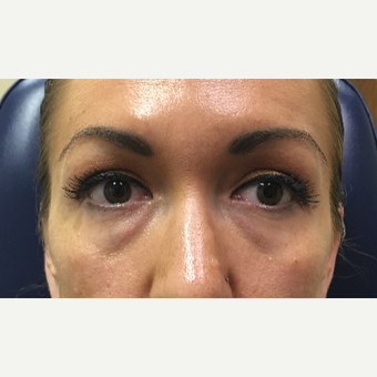 30 year old woman treated with Restylane-L injected into the tear troughs before 3656626