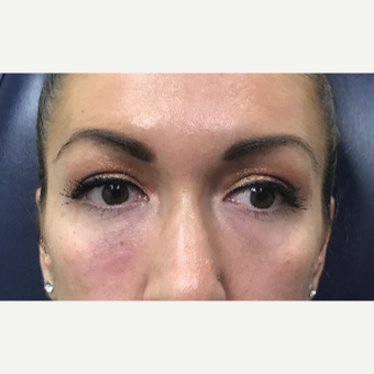 30 year old woman treated with Restylane-L injected into the tear troughs after 3656626