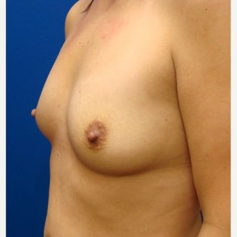 35-44 year old woman treated with Breast Implants 1854910