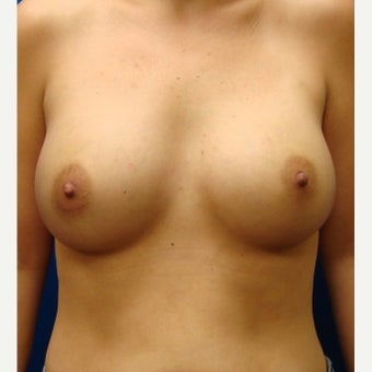 35-44 year old woman treated with Breast Implants after 1854910