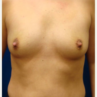 35-44 year old woman treated with Breast Implants before 1854910