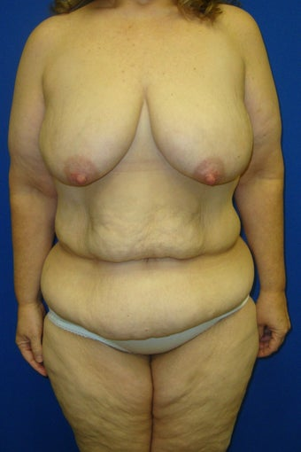 Tummy tuck and augmentation mastopexy before 612619