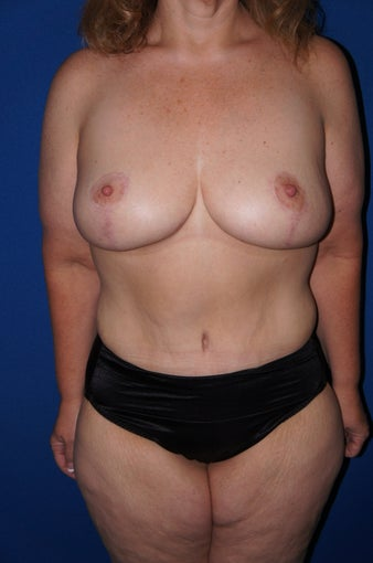 Tummy tuck and augmentation mastopexy after 612619