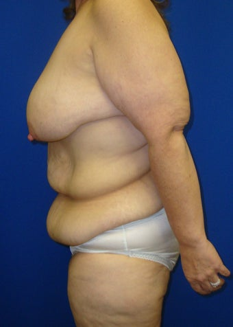Tummy tuck and augmentation mastopexy 612619