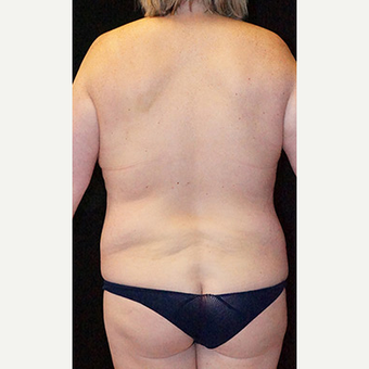 Body Contouring after Lap Band surgery before 3332835