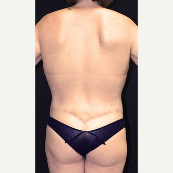 Body Contouring after Lap Band surgery after 3332835