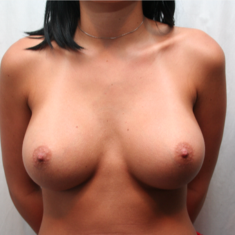 25-34 year old woman treated with Breast Augmentation after 3075180