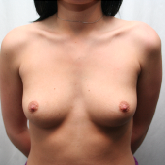 25-34 year old woman treated with Breast Augmentation before 3075180