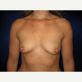 35-44 year old woman treated with Breast Implants before 3765819
