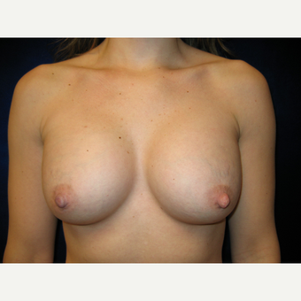 35-44 year old woman treated with Breast Implants after 3765819