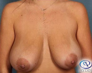 25-34 year old woman treated with Breast Lift before 3325890