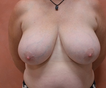Breast Reduction before 1450842
